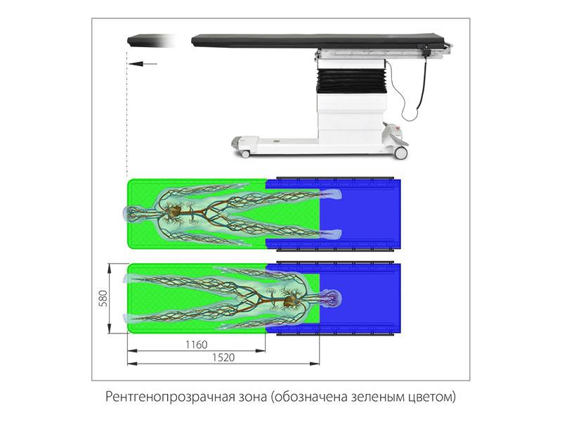 Рентгенопрозрачная зона операционного стола Медин-Сафис