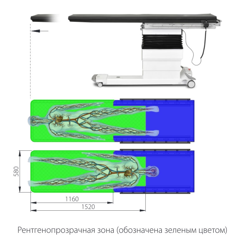 Рентгенопрозрачная зона (обозначена зеленым цветом). Стол операционный Медин Сафис.